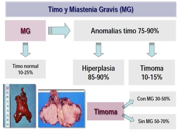 MIASTENIA GRAVIS: TRATAMIENTO – Timectomía (extirpación de la ...