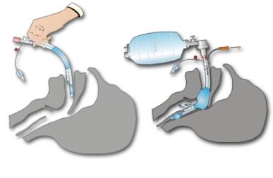 tubo endotraqueal