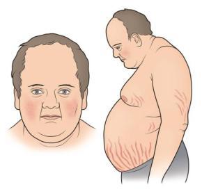 sindrome-de-cushing